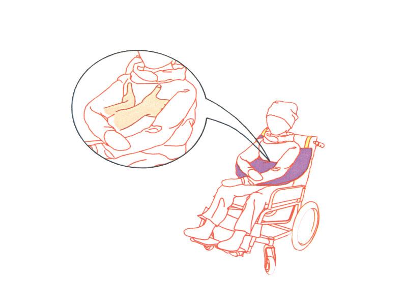 兒童特製擺位支撐墊-腦性麻痺及多重障礙兒童專用